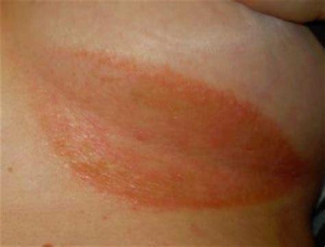 breast rash  leaking png 392x299