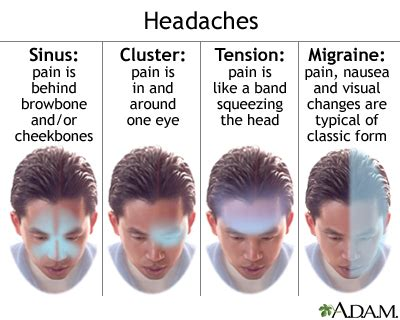Persistent idiopathic facial pain background jpg 400x320