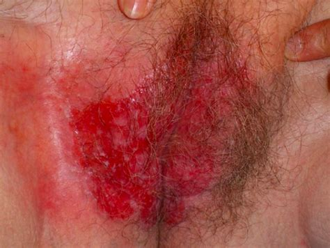 Malignant vulvar lesions overview, melanoma, paget disease png 546x411
